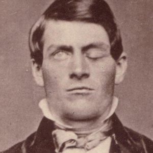 How Phineas Gage's Freak Accident Changed Science Forever