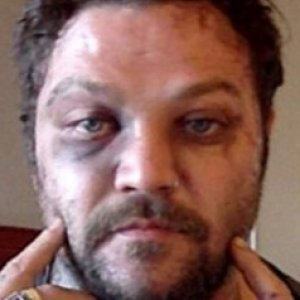What Really Happened To Bam Margera Zergnet