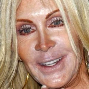 Celebs Who Ruined Their Careers With Plastic Surgery